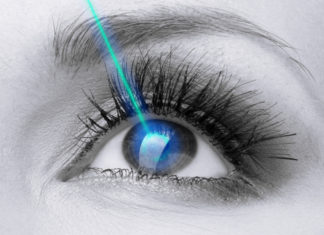 When Can I Return to Exercise After Eye Laser Surgery?